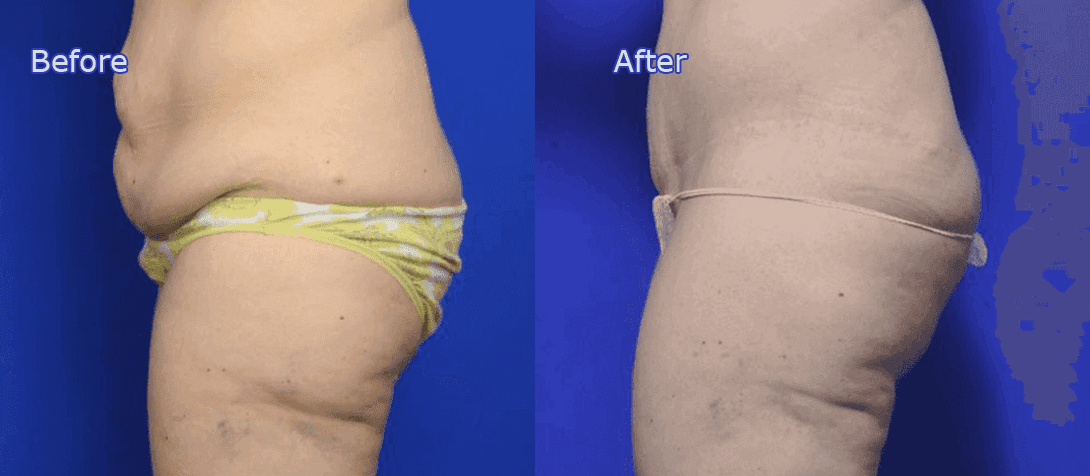 Dr Morris Ritz Malverne - abdominoplasty before and after image 1a