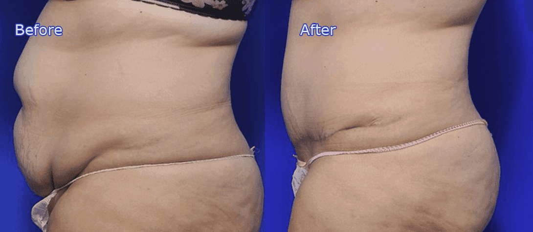 abdominoplasty before and after image 2a