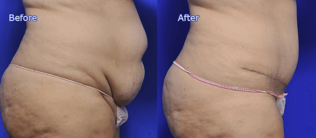 tummy tuck before and after image 3a - Ritz Plastic Surgery Melbourne