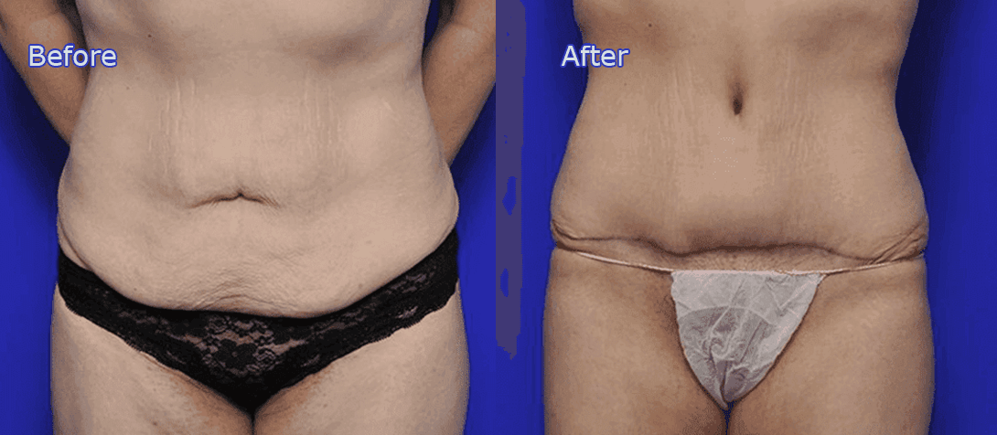 tummy tuck before and after image 4a - abdominoplasty - Dr Ritz Melbourne