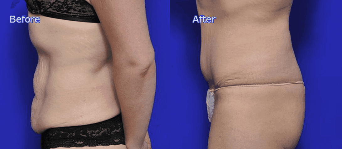 tummy tuck before and after image 5a