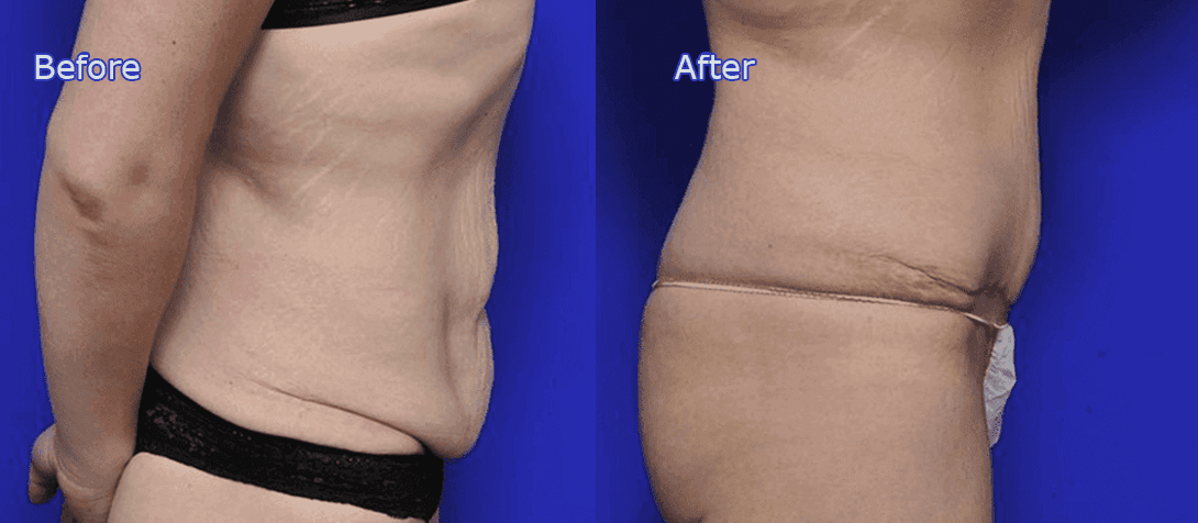 tummy tuck - abdominoplasty before and after image 6a