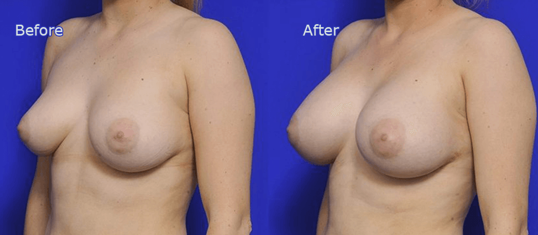 breast augmentation surgery before and after - image 010a