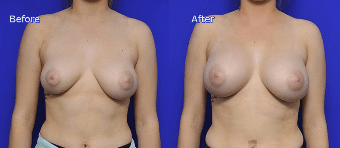 breast enhancement before and after - image 011a