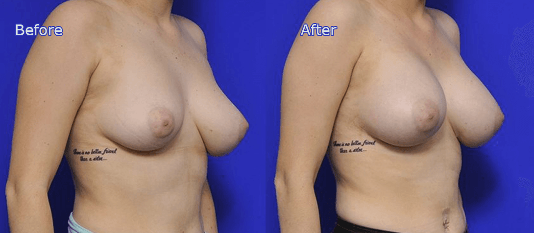 breast augmentation before and after - image 012a