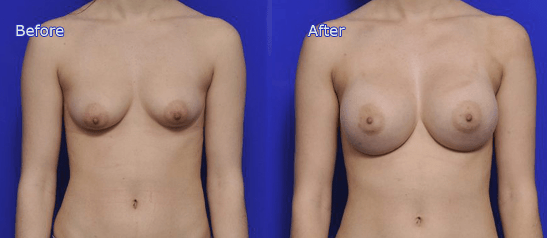 boob job before and after - image 013a