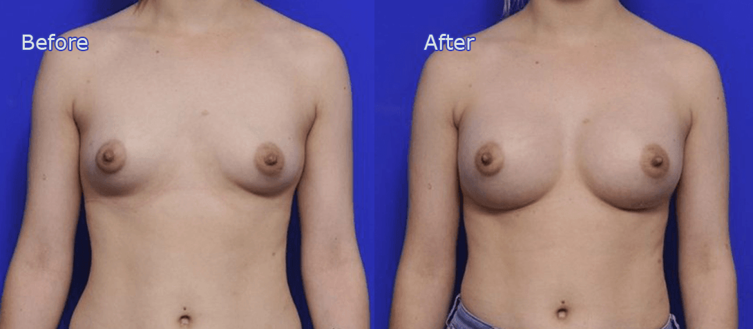 breast enlargement before and after - image 014a