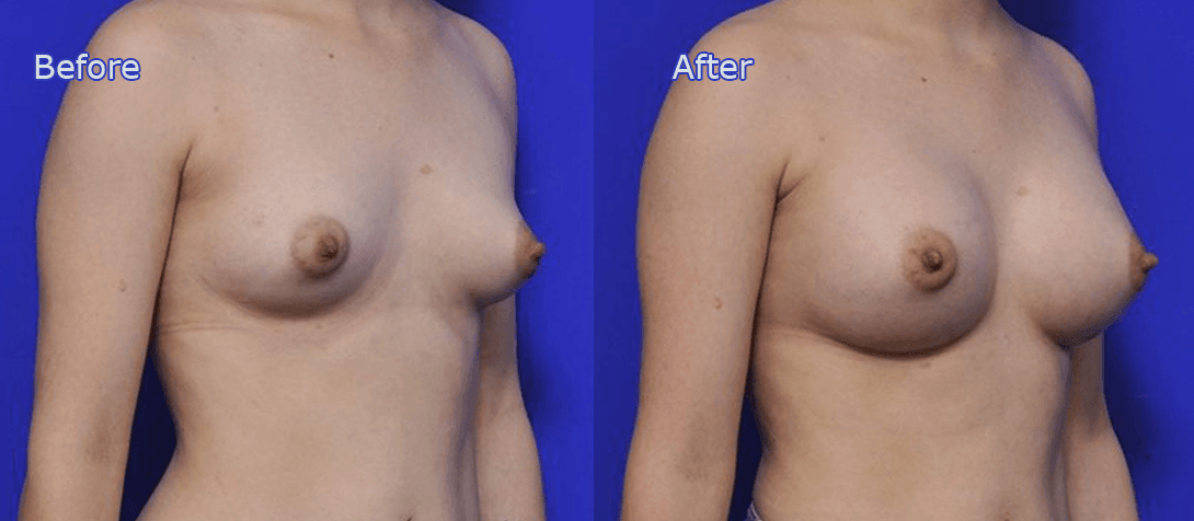 breast implant surgery before and after - image 015a