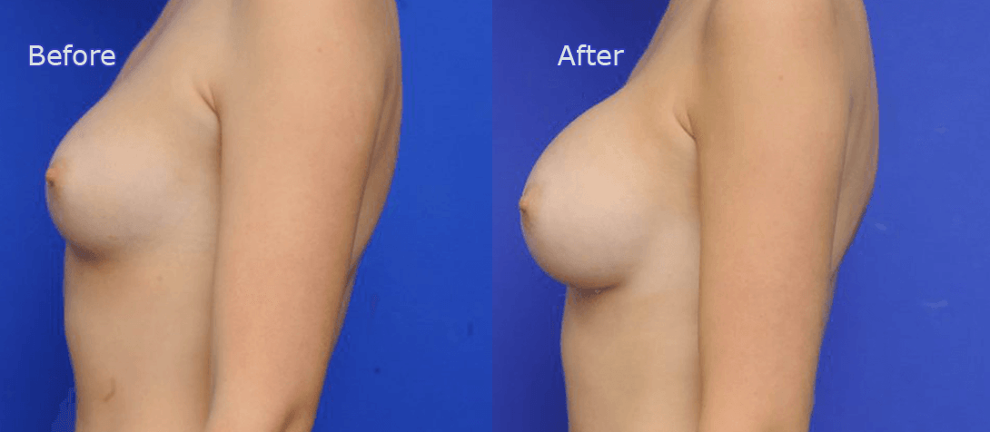 breast implants before and after - image 016a