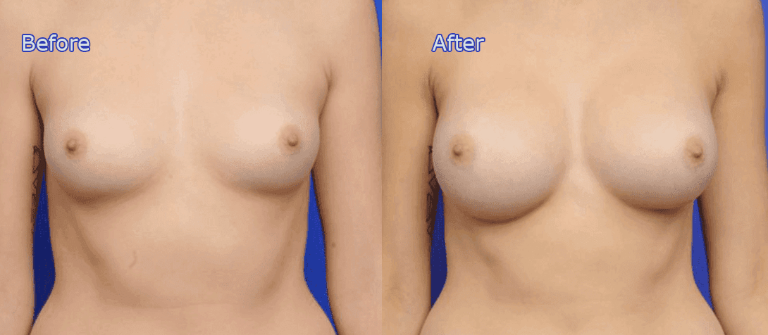 breast augmentation before and after - image 017a