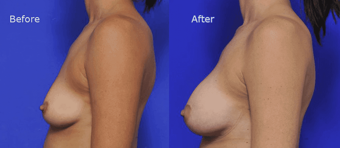 breast augmentation before and after - image 019a