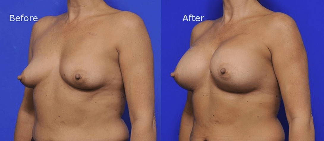 breasts before and after augmentation surgery - image 001aa