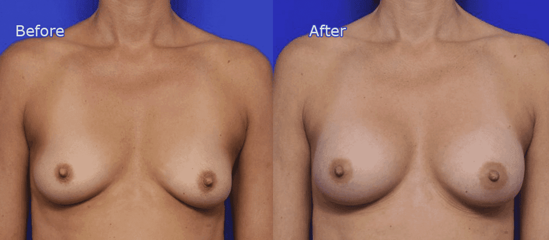 breast enlargement surgery before and after - image 020a