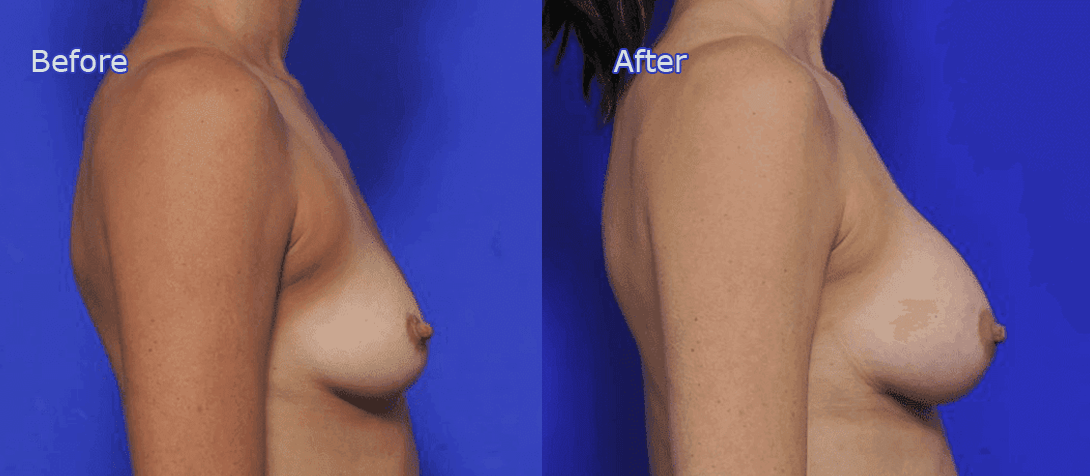 breast augmentation before and after - image 021a