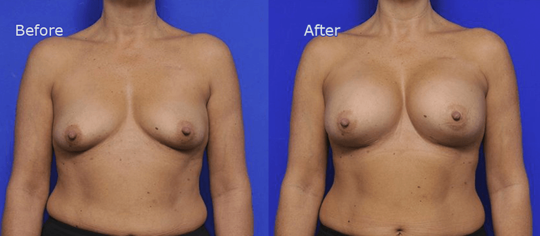 breast augmentation before and after - image 002a
