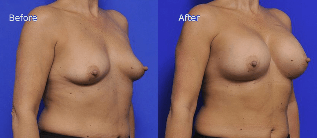 breast augmentation before and after - image 003a