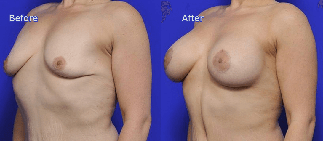 breast implants - breast augmentation before and after - image 004a