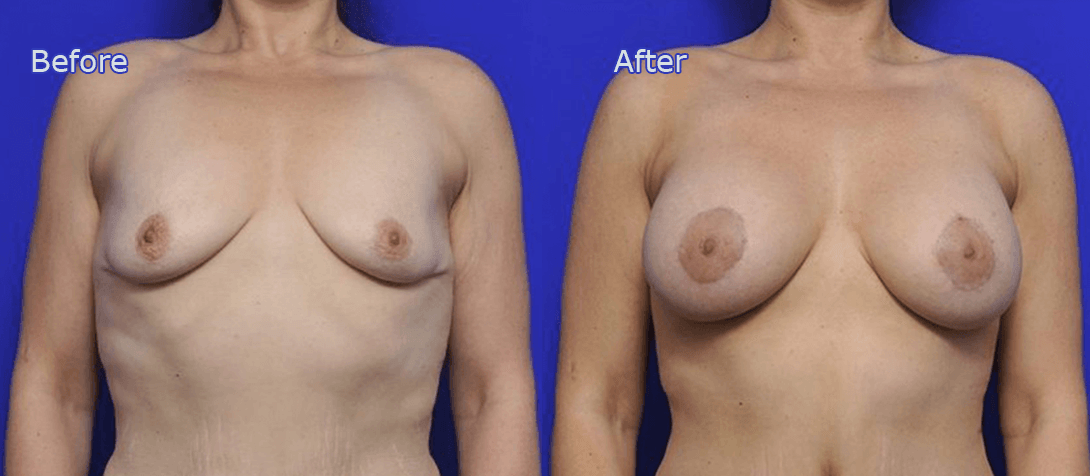 breast augmentation before and after - image 005a - breast implants