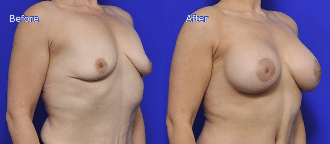 breast augmentation before and after - image 006a