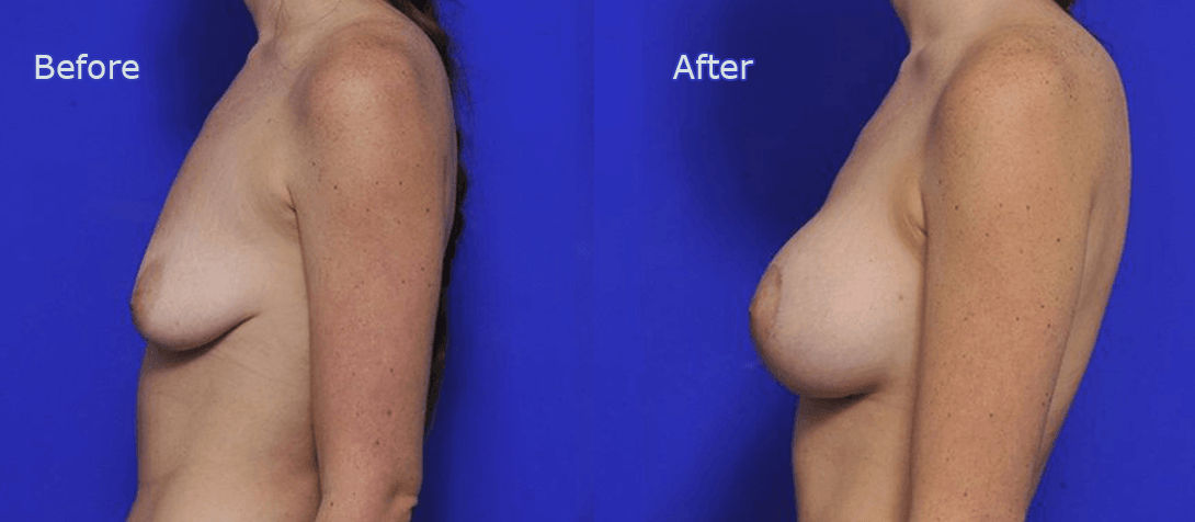 breast augmentation before and after - image 007a - breast implant surgery