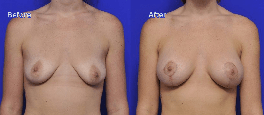 breast implants before and after - image 002a