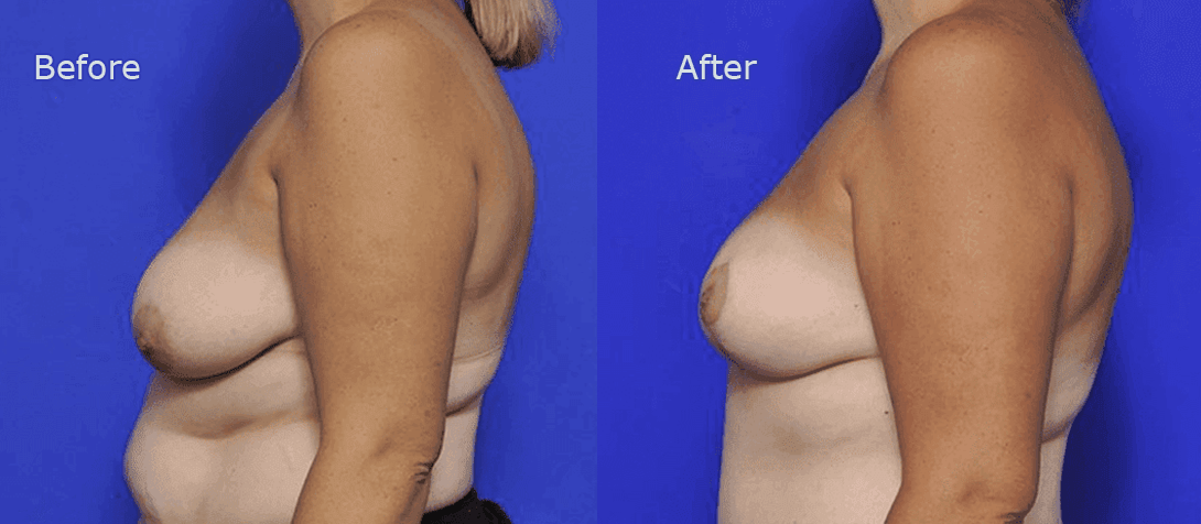 breast reduction surgery before and after - image 001a