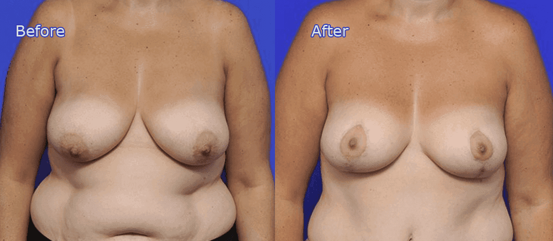 breast reduction surgery before and after - image 002a
