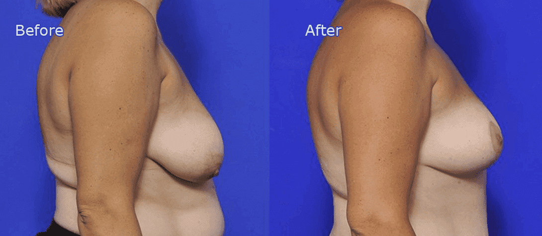 breast reduction before and after - image 003a