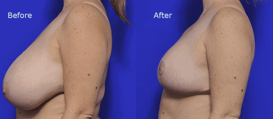 breast reduction before and after - image 004a