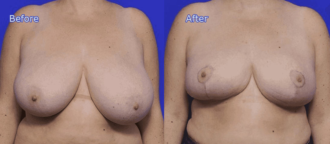 breast reduction surgery before and after - image 005a
