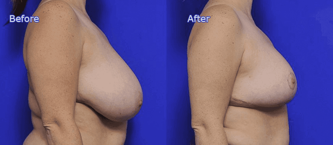 breast reduction before and after - image 006a