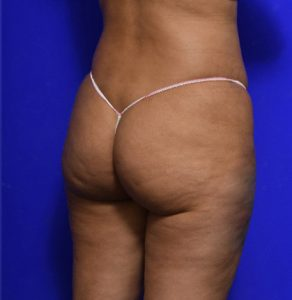 Dr Ritz Melbourne & Malvern - brazilian butt lift before and after image 010