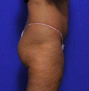 brazilian butt lift before and after - Dr Ritz Me - after image 011