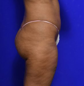 brazilian butt lift before and after image 012 - Dr Morris Ritz Melbourne