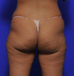 brazilian butt lift before and after image 007