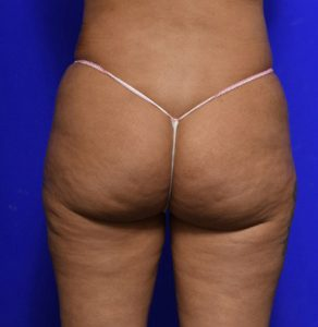 brazilian butt lift before and after image - BBL - Dr Morris Ritz Melbourne & Malverne - 008