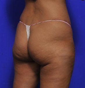 BBL surgery - brazilian butt lift before and after photo - Dr Morris Ritz Melbourne - 009