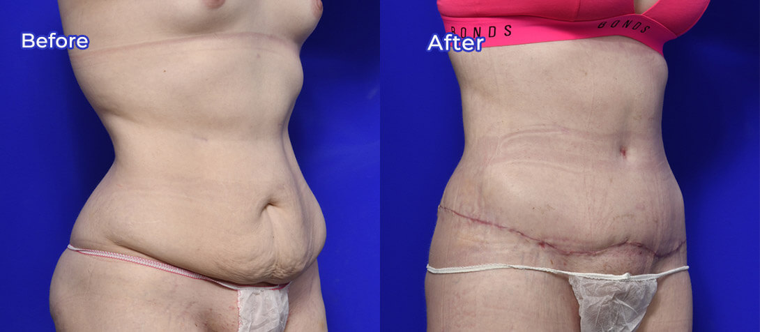 Abdominoplasty photo 02, Dr Morris Ritz
