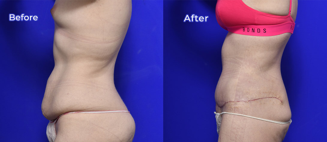 Abdominoplasty patient, before and after 05