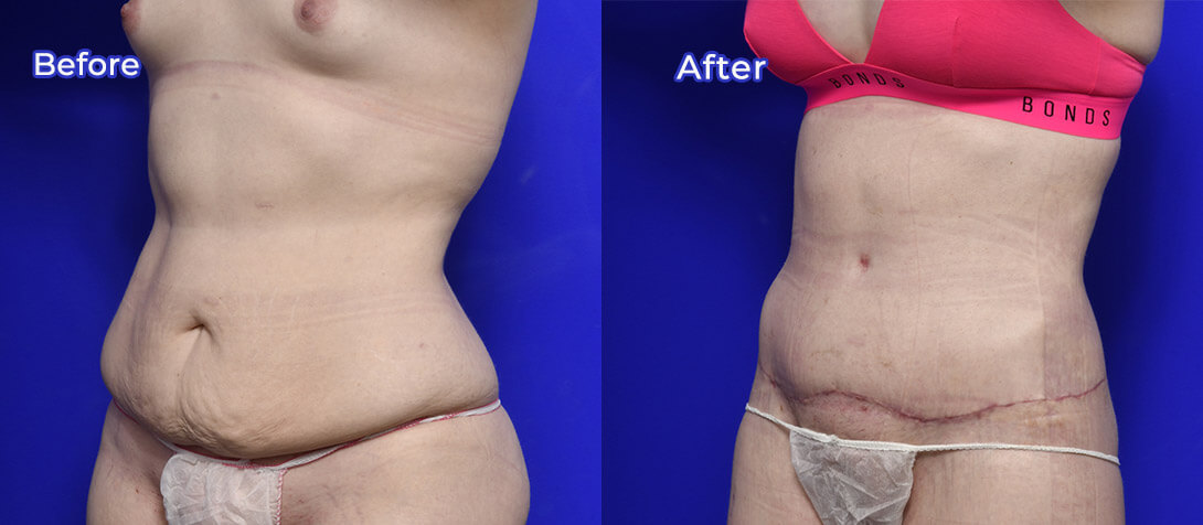 Patient before and after tummy tuck surgery, photo 06