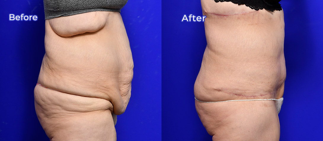 Tummy tuck patient before & after 07, Ritz Plastic Surgery