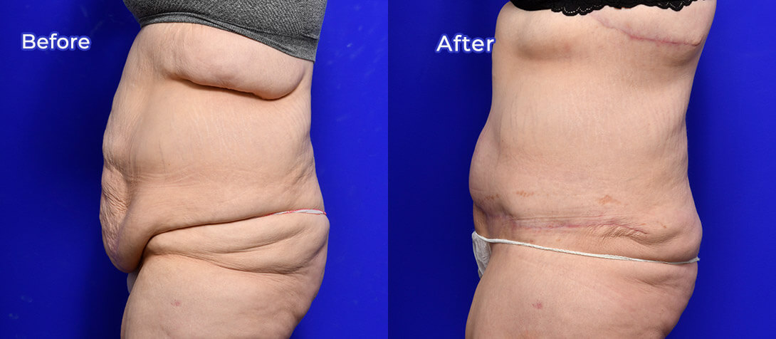 Abdominoplasty before and after 11, Dr Ritz
