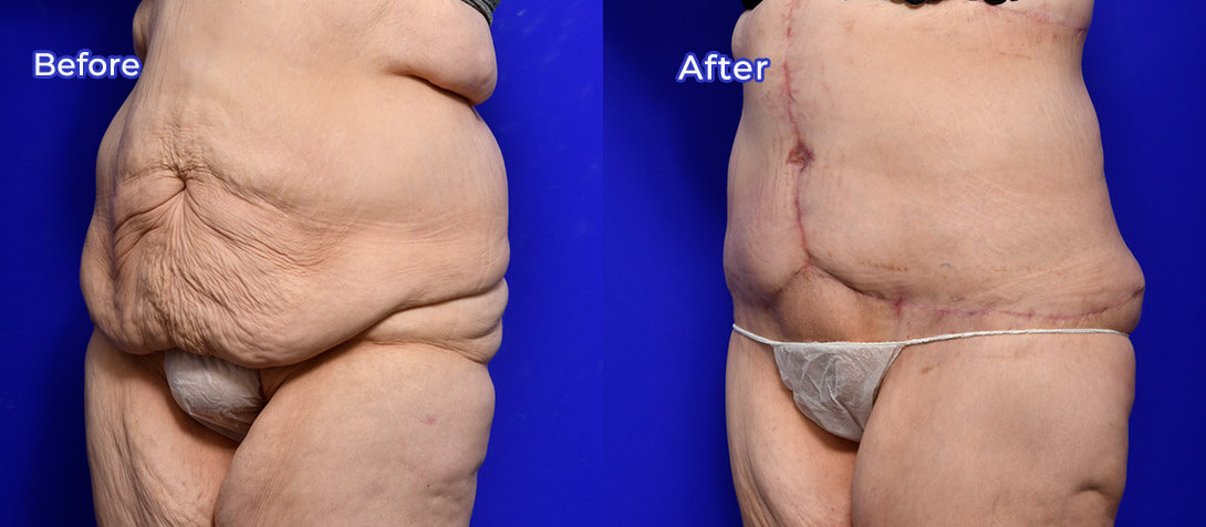 Tummy tuck surgery 12, before & after gallery