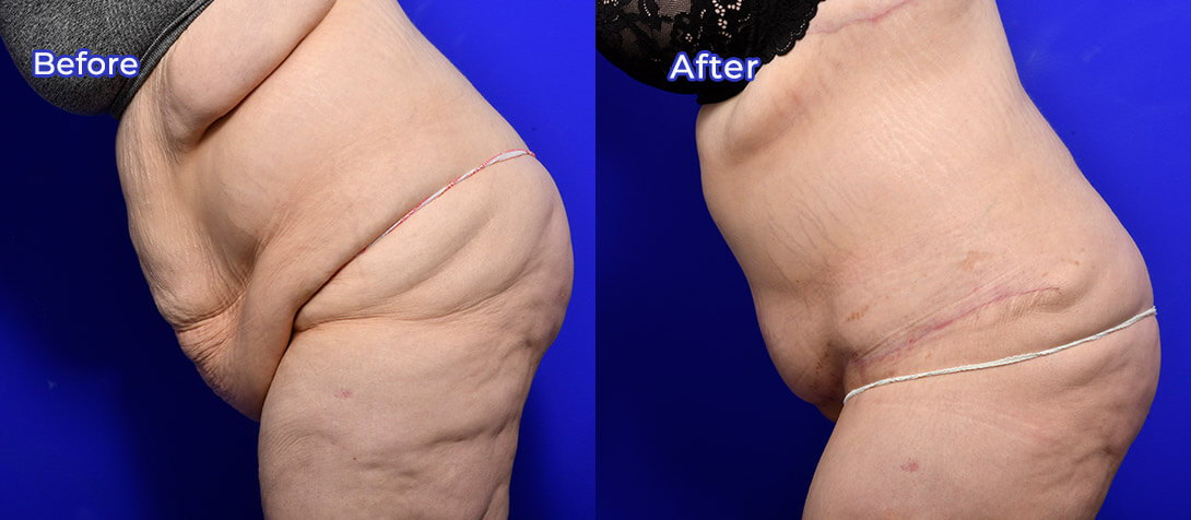 Abdominoplasty patient before and after surgery 13