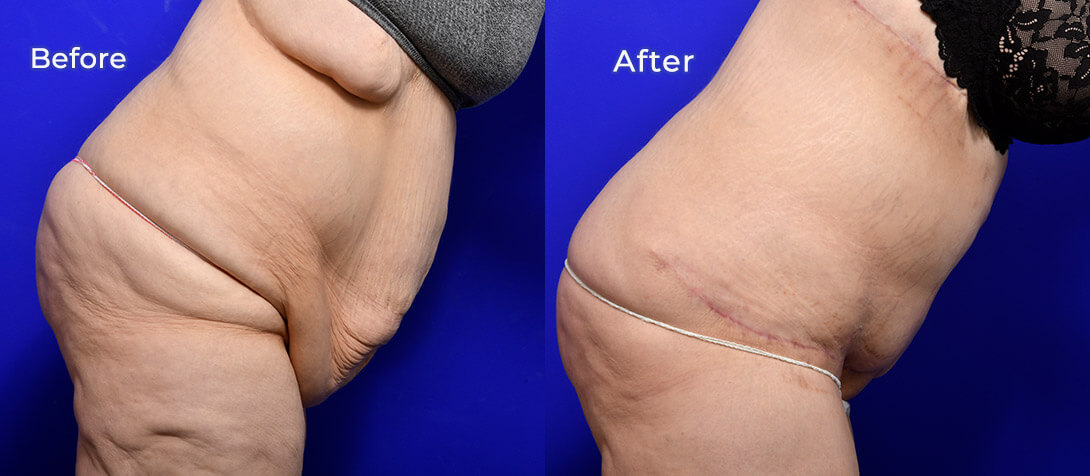 Tummy tuck before and after 14 (abdominoplasty), Ritz Plastic Surgery