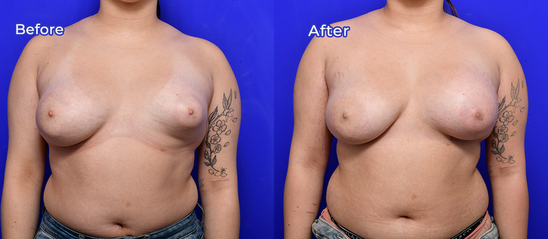 Breast asymmetry 01a, patient before & after, front view