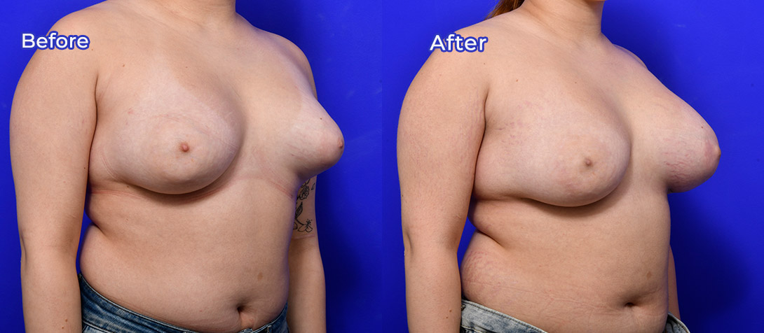 Patient before and after breast asymmetry correction surgery 01b