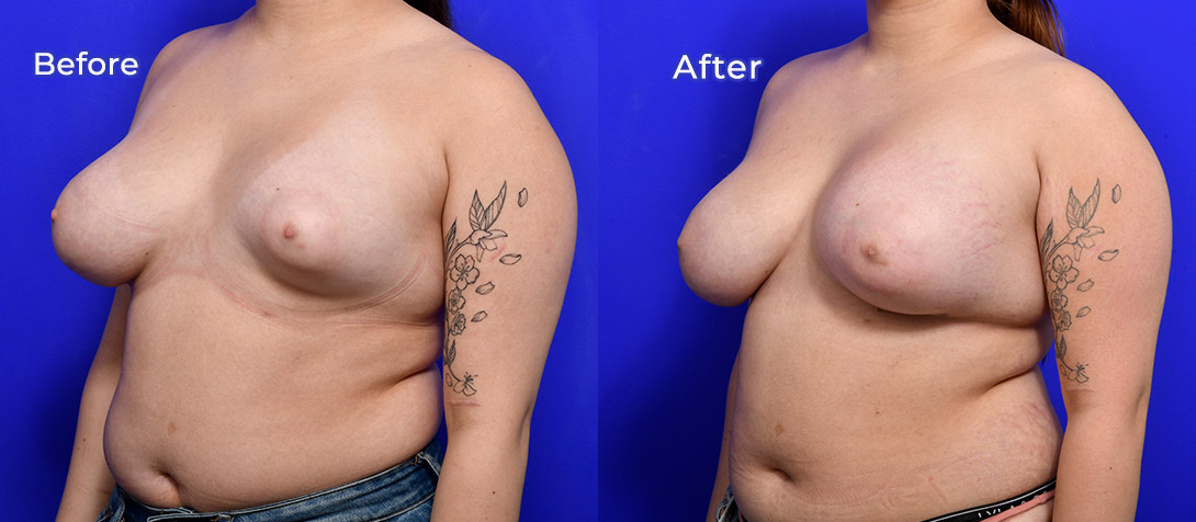 Breast asymmetry surgery 01c, Ritz Plastic Surgery, angle view