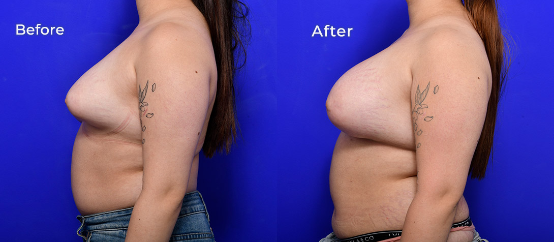 A patient before and after breast asymmetry surgery, photo 01d