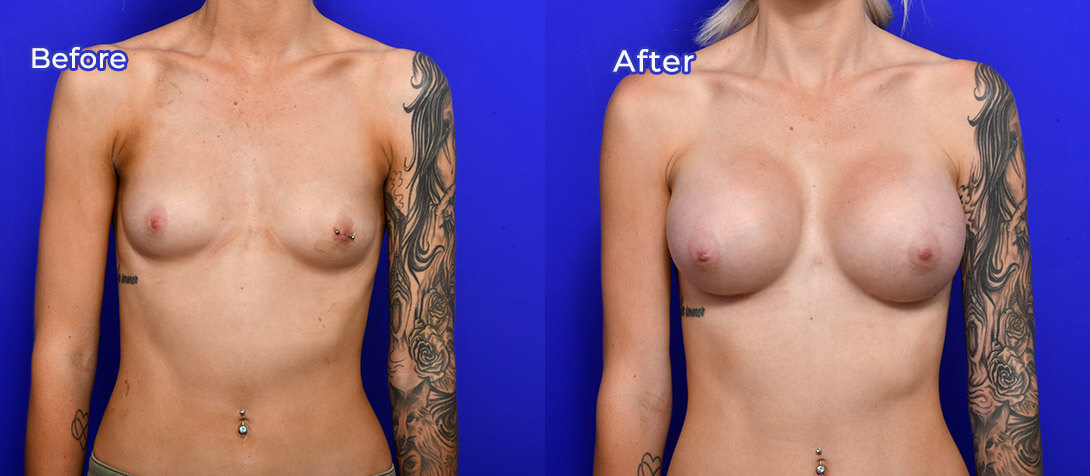 Breast augmentation with implants, patient before & after 01a
